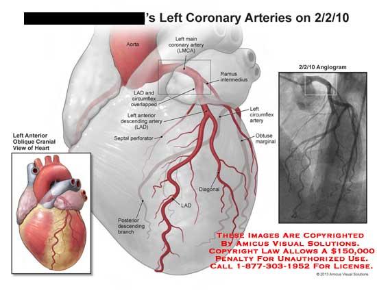 amicus,injury,heart,attack,coronary,arteries,posterior,descending,branch,diagonal,LAD,aorta,circumflex,septal,perforator,anterior,,angiogram,obtuse,marginalLMCA,main,ramus,intermedius