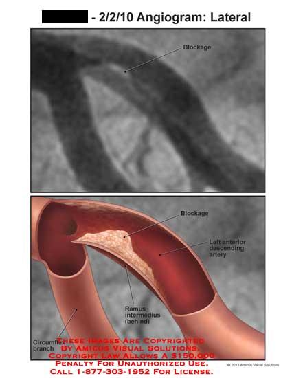 amicus,injury,radiology,coronary,artery,blockage,circumflex,branch,ramus,intermedius,anterior,descending,heart