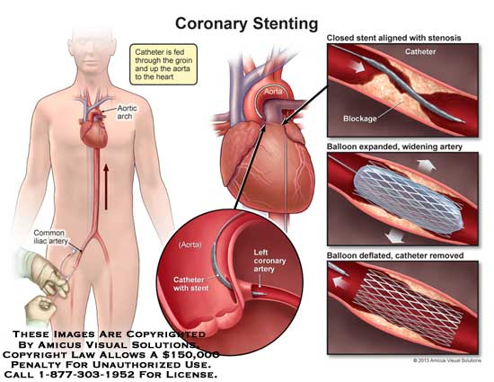 amicus,surgery,heart,stent,coronary,aorta,catheter,artery,common,iliac,arortic,arch,stenosis,blockage,balloon,expand,widening,remove