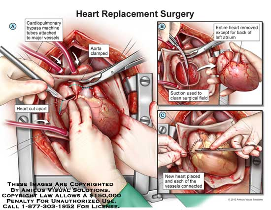 amicus,surgery,heart,replacement,cardiopulmonary,bypass,machine,tube,major,vessel,cut,connect,remove,left,atrium,suction,clean,surgical,field,aorta,clamp