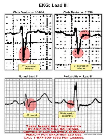 amicus,chart,EKG,lead,ST,depression,ischemia,pericarditis