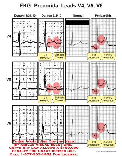 amicus,chart,EKG,lead,precordial,ST,elevation,biphasic,T,wave,PR,depression
