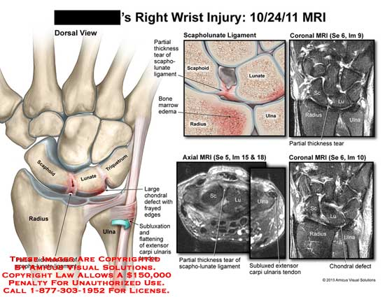 amicus,injury,wrist,radius,ulna,scaphoid,lunate,triquetrum,partial,thickness,tear,chondral,defect,bone,marrow,edema,ligament,scapho-lunate,subluxed,extensor,carpi,ulnaris,tendon,MRI