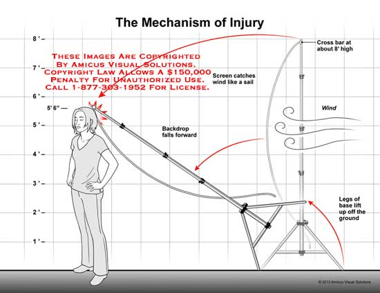 amicus,injury,brain,mechanism,backdrop,fall,forward,wind,crossbar,legs,base,lift,ground