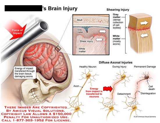amicus,injury,brain,energy,impact,tissue,axon,skull,gray,matter,shear,white,cell,bodies,healthy,neuron,detachment,death,disintegration
