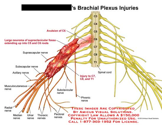 amicus,injury,brachial,plexus,spinal,cord,avulsion,cervical,spine,suprascapular,nerve,subscapular,axillary,median,radial,ulnar,pectoral,thoracic,phrenic,subclavicular,musculocutaneous,fossa,root,neuron