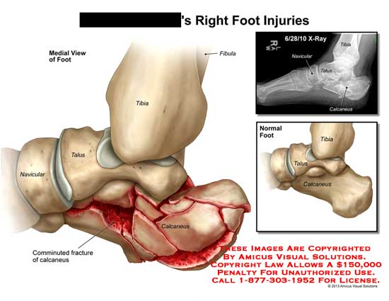 amicus,injury,foot,tibia,fibula,talus,navicular,bone,calcaneus,comminuted,fracture,x-ray
