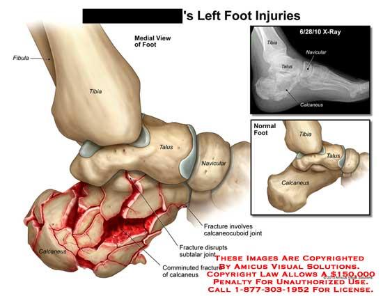amicus,injury,foot,tibia,fibula,talus,navicular,calcaneus,fracture,calcaneocuboid,joint,comminuted,disrupt,subtalar,x-ray
