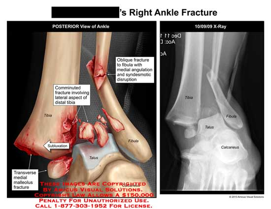 amicus,injury,x-ray,ankle,comminuted,fracture,tibia,fibula,calcaneus,transverse,medial,malleolus,sublaxation,talus,angulation,syndesmotic,disruption