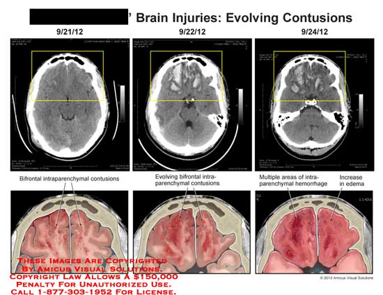 amicus,injury,brain,evolving,contusion,bifrontal,intraparenchymal,hemorrhage,edema