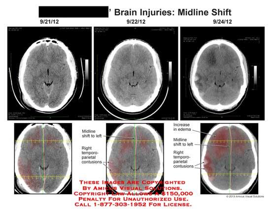 amicus,injury,brain,midline,shift,temporo-parietal,contusion,increase,edema