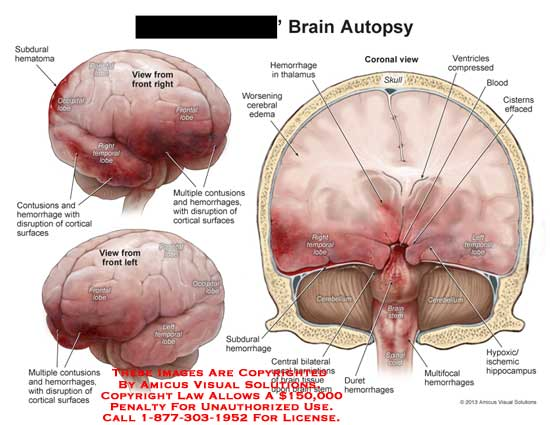 amicus,injury,brain,autopsy,subdural,hematoma,temporal,lobe,frontal,parietal,occipital,contusion,hemorrhage,disruption,cortical,surfaces,cemtral,bilateral,uncal,herniation,tissue,stem,duret,cerebellum,blood,cister,effaced,skull,thalamus,cerebral,ventricles,compressed,hypoxic,ischemic,hippocampus