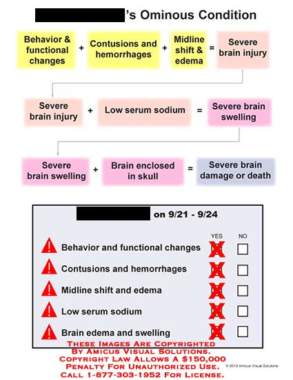 amicus,chart,injury,condition,behavior,functional,change,contusion,hemorrhage,midline,shift,edema,sever,brain,injury,serum,sodium,swelling,brain,skull,damage,death