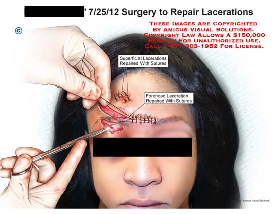 amicus,surgery,laceration,face,forehead,wound,superficial,repair,suture