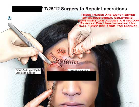 amicus,surgery,laceration,face,forehead,wound,brow,eyelid,excise,repair,suture