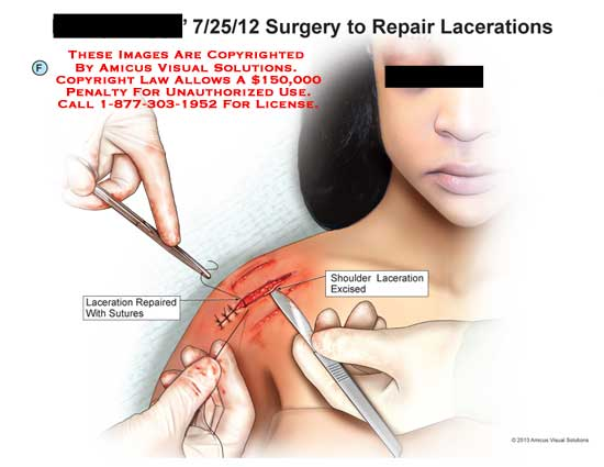 amicus,surgery,laceration,shoulder,excise,suture,repair