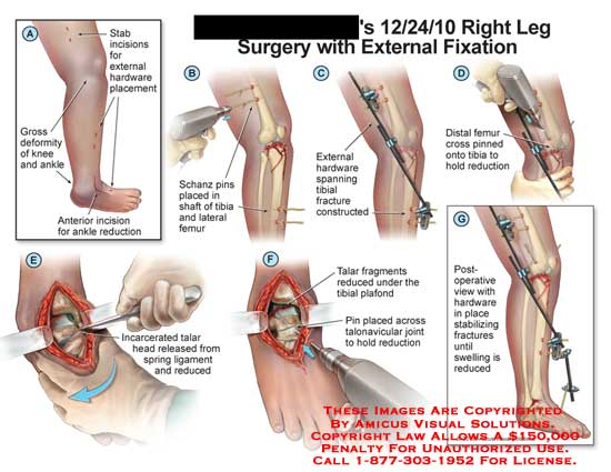 amicus,surgery,leg,gross,deformity,ankle,incision,reduction,stab,incision,hardware,placement,Schanz,pin,shaft,tibia,femur,span,fracture,construct,cross,incarcerated,talar,head,spring,ligament,fragment,plafond,talonavicular,joint,swelling