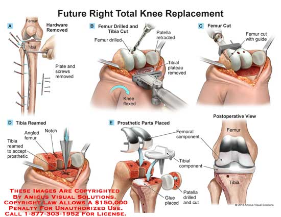amicus,sugery,knee,total,replacement,tibia,femur,patella,plate,screw,drill,cut,tibial,plateau,remove,retract,flex,guide,femoral,component,glue,plce,ream,prosthetic,notch