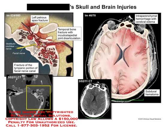 amicus,injury,head,skull,brain,fracture,tympanic,portion,facial,nerve,canal,temporal,bone,petrous,apex,disarticulation,subdural,hematoma,intraparenchymal,hemorrhage,cerebral,edema,vestibulocochlear
