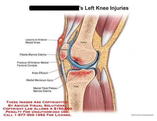 amicus,injury,knee,lesions,femur,tibia,patella,marrow,edema,fracture,meniscus,tibial,plateau,effusion,condyle