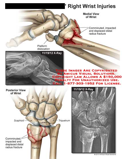 amicus,injury,wrist,fracture,scaphoid,lunate,triquetrum,comminuted,impact,displace,radius,ulna,metacarpal,x-ray,pisiform,dislocation