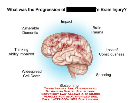 amicus,injury,brain,progression,vulnerable,dementia,thinking,ability,impair,widespread,cell,death,impact,trauma,loss,consciousness,shearing,blossoming