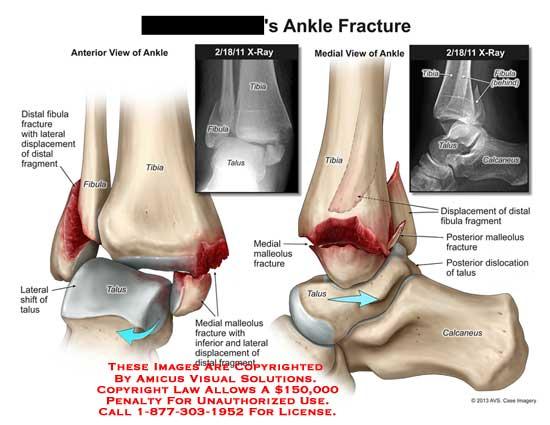 amicus,injury,ankle,fracture,fibula,displacement,tibia,talus,calcaneus,shift,malleolus,dislocation
