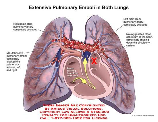 amicus,medical,lungs,emboli,pulmonary,blocked,occluded,oxygenated,blood,circulatory,heart,bronchi,bronchioles,alveoli