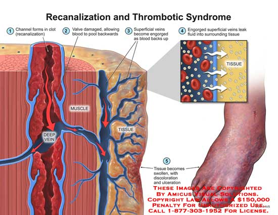amicus,inury,thrombic,syndrome,recanalization,deep,vein,thrombosis,channel,form,clot,valve,damage,allow,blood,pool,backward,muscle,tissue,swollen,discoloration,ulceration,engorge,fluid,surrounding