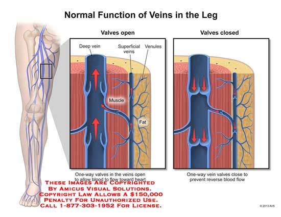 amicus,anatomy,leg,vein,valve,muscle,one-way,blood,flow,heart,prevent,reverse,venule,superficial,fat