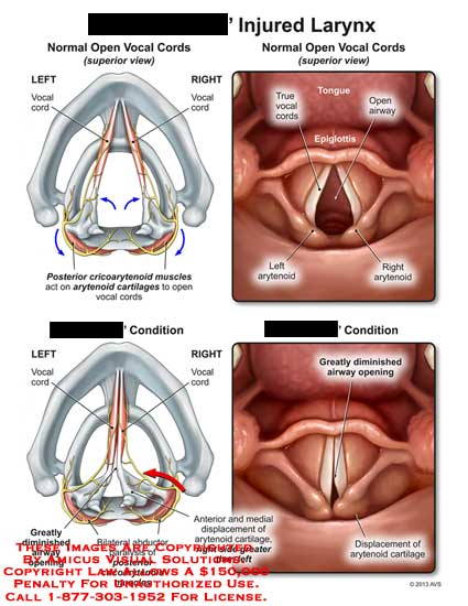 amicus,injury,larynx,open,vocal,cord,cricoarytenoid,muscle,arytenoid,cartilage,condition,true,tongue,airway,epiglottis,diminished,displacement,greater,bilateral,abductor,paralysis