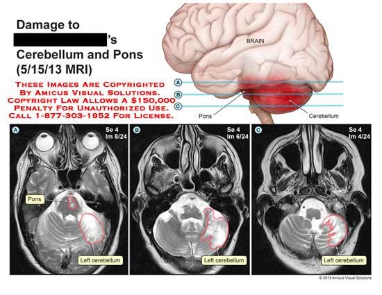 amicus,injury,cerebellum,pons,brain,medulla,concussion,gyri,sulci,lobes