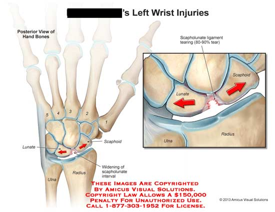 amicus,injury,wrist,hand,bone,lunate,ulna,radius,widening,scapholunate,interval,scaphoid,ligmanet,tear
