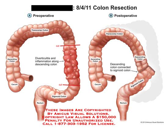 Diagram Of Colon Surgery Search For Wiring Diagrams