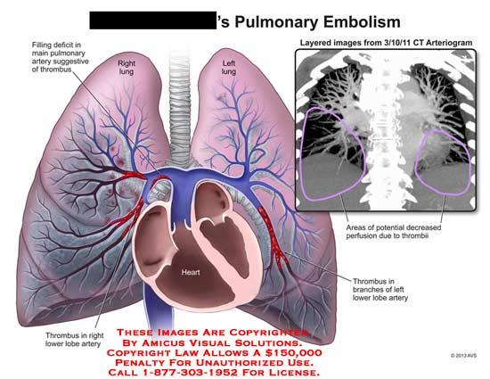 amicus,injury,pulmonary,embolism,lung,thrombus,CT,perfusion,heart,artery,lobe