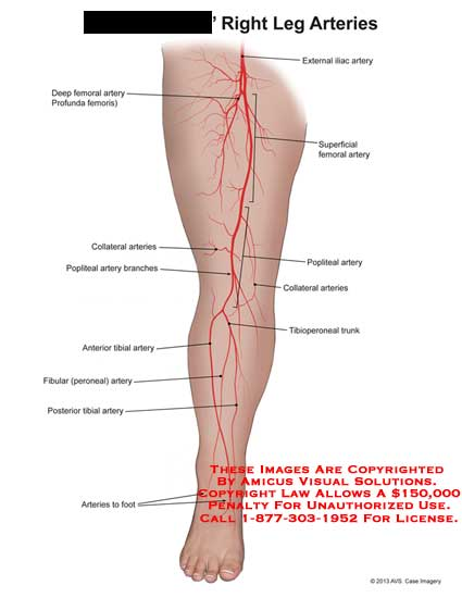 amicus,anatomy,leg,arteries,external,ilac,femoral,profunda,superficial,collateral,popliteal,tibioperoneal,trunk,fibular,peroneal,tibial,artery