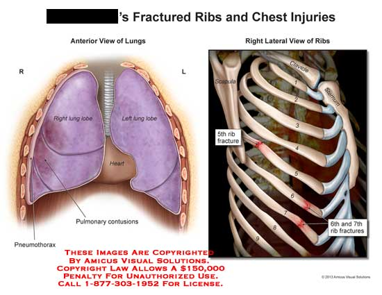 amicus,injury,lung,rib,chest,fracture,5th,6th,7th,pulmonary,contusions,pneumothorax