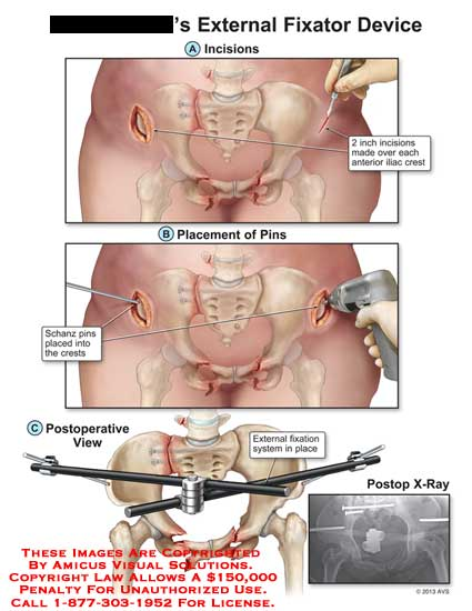 amicus,surgery,external,fixator,device,incisions,anterior,iliac,crest,pins