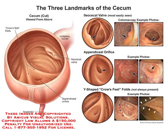 The Three Landmarks of the Cecum