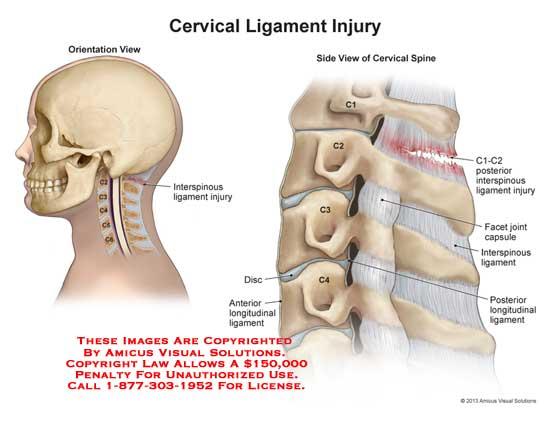 amicus,injury,cervical,ligament,interspinous,C-1,C-2,facet,joint,capsule,posterior,longitudinal,disc,C-3,C-4,C1,C2,C3,C4,anterior