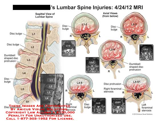 lumbar spine retrolisthesis Grade 1 retrolisthesis lumbar spine scholarly search engine find information about academic papers by weblogrcom grade 1 retrolisthesis lumbar spine.
