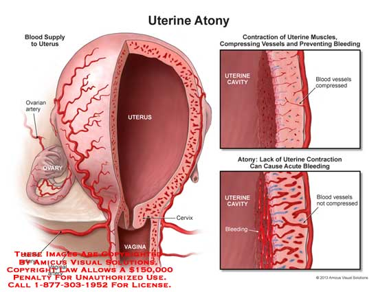 amicus,injury,uterine,atony,blood,ovarian,artery,uterus,vaginal,cervix,cavity,vessels,muscle