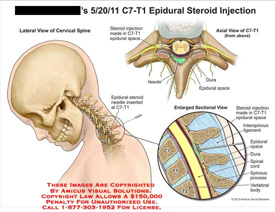 amicus,injection,epidural,steroid,C7-T1,space,needle,dura,interspinous,ligament,spinal,cord,vertebral,body,process