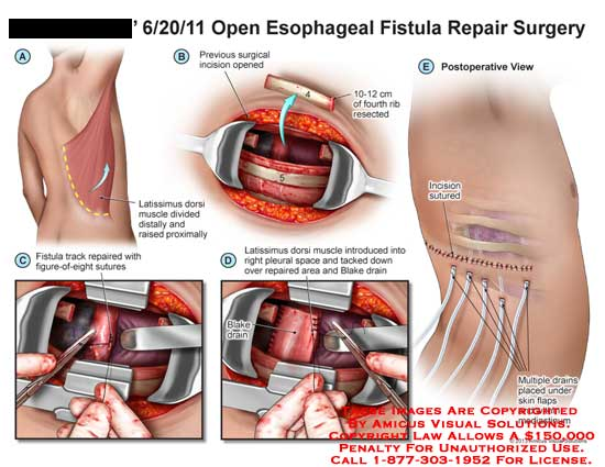 amicus,surgery,esophageal,fistula,repair,surgery,latissimus,dorsi,muscle,distally,resected,figure-of-eight,blake,drain