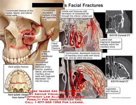 amicus,injury,fracture,face,facial,comminuted,medial,lateral,inferior,orbital,walls,hard,plate,mandibular,ramus,depressed,maxillary,sinus,herniation,blood,fat,zygomatic,arch,CT