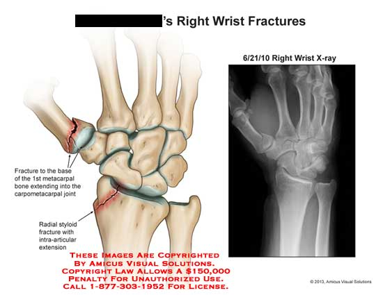 Right Wrist Joint Diagram - Electrical Work Wiring Diagram •