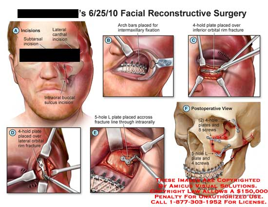 amicus,surgery,facial,reconstructive,reconstruction,incisions,lateral,canthal,intraoral,buccal,sulcus,arch,bars,intermaxillary,fixation,4-hold,plate,inferior,orbital,screw,L