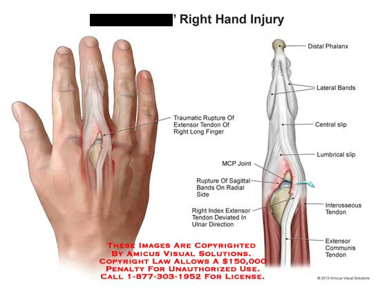 amicus,injury,hand,traumatic,rupture,endon,extensor,finger,distal,phalanx,lateral,bands,central,slip,lumbrical,interosseous,tendon,communis,MCP,joint,sagittal,index,ulnar,direction