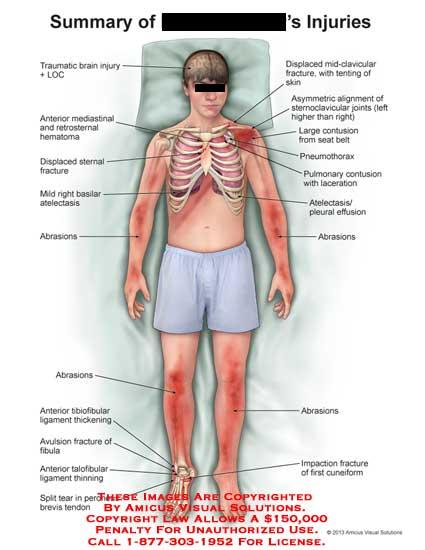 amicus,injury,brain,LOC,mediastinal,retrosternal,hermatoma,displaced,sternal,fracture,atelectasis,basilar,abrasians,tibiofibular,ligament,avulsion,peroneus,brevis,tendon,mid-clavicular,sternoclavicular,contusion,pneumothoraxpulmonary,effusion,cuneiform