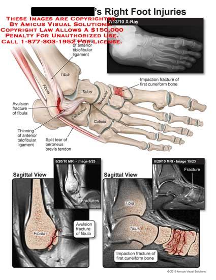 amicus,injury,foot,tibia,fibula,talus,calcaneus,cuboid,navicular,cuboid,impaction,fracture,cuneiform,bone,tibuofibular,ligament,avulsion,talofibular,peroneus,brevis,tendon,MRI